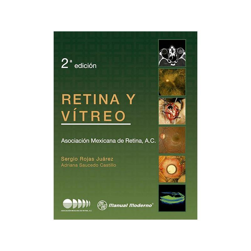 Retina y vítreo